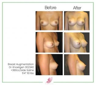 dr-knoetgen breast-augmentation 4
