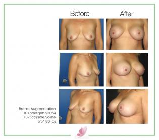 dr-knoetgen breast-augmentation 40