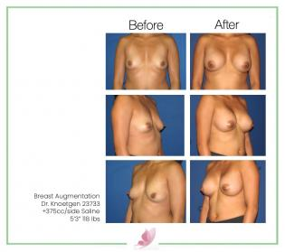 dr-knoetgen breast-augmentation 41