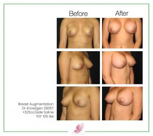 dr-knoetgen breast-augmentation 42
