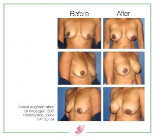 dr-knoetgen breast-augmentation 43