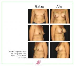 dr-knoetgen breast-augmentation 44
