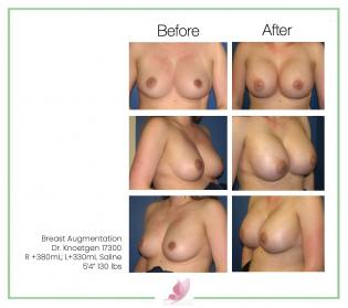 dr-knoetgen breast-augmentation 45