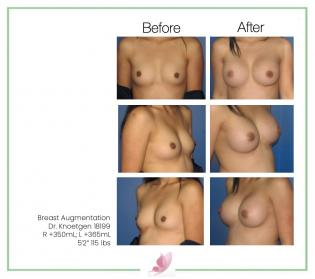 dr-knoetgen breast-augmentation 46