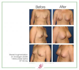 dr-knoetgen breast-augmentation 47