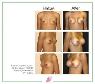 dr-knoetgen breast-augmentation 48