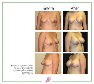 dr-knoetgen breast-augmentation 49
