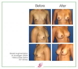dr-knoetgen breast-augmentation 5