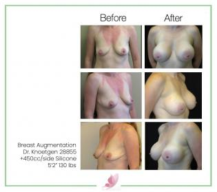 dr-knoetgen breast-augmentation 50