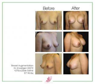 dr-knoetgen breast-augmentation 51