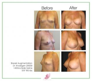 dr-knoetgen breast-augmentation 52