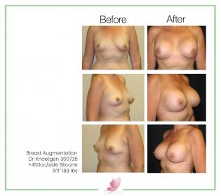 dr-knoetgen breast-augmentation 53