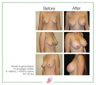 dr-knoetgen breast-augmentation 54