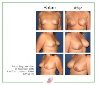 dr-knoetgen breast-augmentation 55