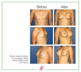 dr-knoetgen breast-augmentation 56