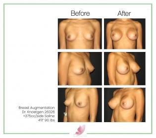 dr-knoetgen breast-augmentation 57