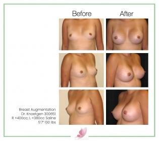 dr-knoetgen breast-augmentation 58