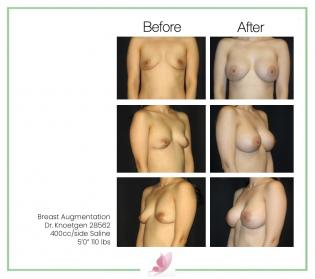 dr-knoetgen breast-augmentation 59