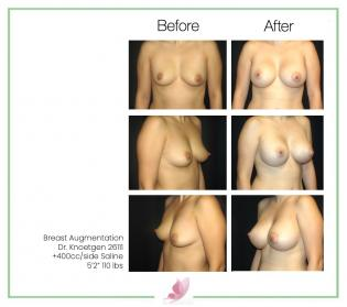 dr-knoetgen breast-augmentation 6