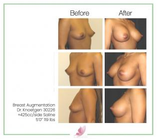 dr-knoetgen breast-augmentation 60