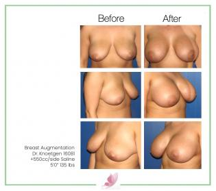 dr-knoetgen breast-augmentation 61
