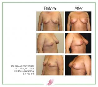 dr-knoetgen breast-augmentation 63