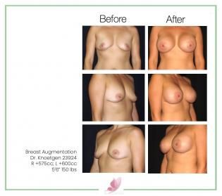 dr-knoetgen breast-augmentation 64