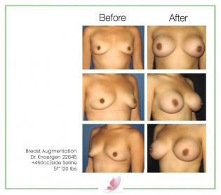 dr-knoetgen breast-augmentation 65
