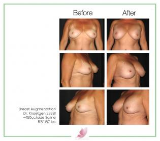 dr-knoetgen breast-augmentation 66