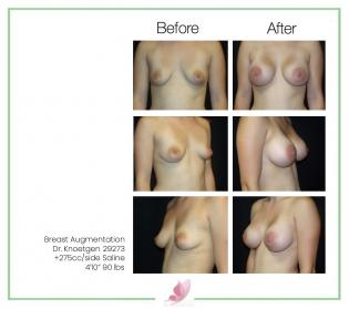 dr-knoetgen breast-augmentation 67