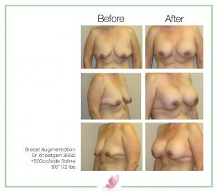 dr-knoetgen breast-augmentation 68