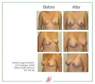 dr-knoetgen breast-augmentation 7