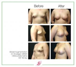 dr-knoetgen breast-augmentation 70