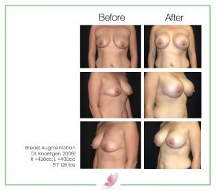 dr-knoetgen breast-augmentation 71