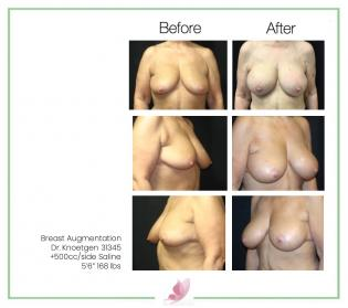 dr-knoetgen breast-augmentation 72