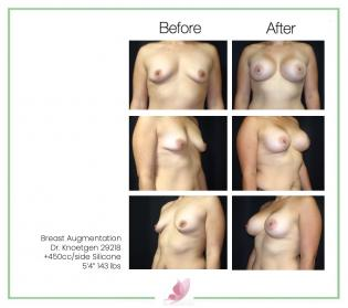 dr-knoetgen breast-augmentation 73