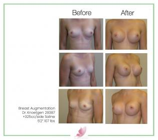 dr-knoetgen breast-augmentation 74