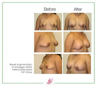 dr-knoetgen breast-augmentation 75