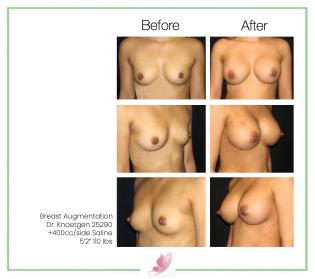 dr-knoetgen breast-augmentation 76