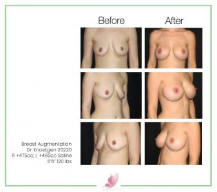dr-knoetgen breast-augmentation 77