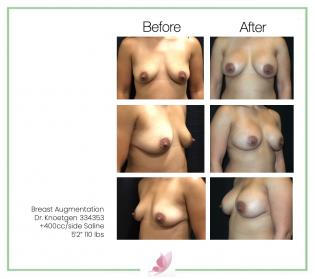 dr-knoetgen breast-augmentation 78