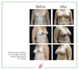 dr-knoetgen breast-augmentation 79