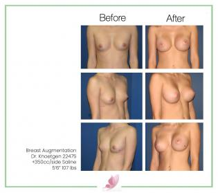 dr-knoetgen breast-augmentation 8