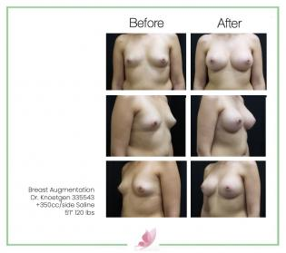 dr-knoetgen breast-augmentation 80