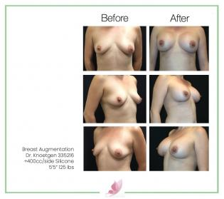 dr-knoetgen breast-augmentation 81