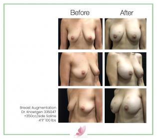 dr-knoetgen breast-augmentation 82