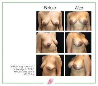 dr-knoetgen breast-augmentation 83