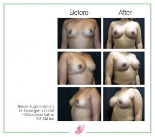 dr-knoetgen breast-augmentation 84