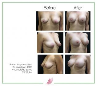 dr-knoetgen breast-augmentation 85