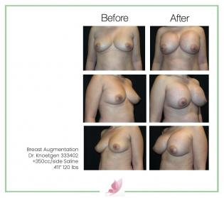 dr-knoetgen breast-augmentation 86